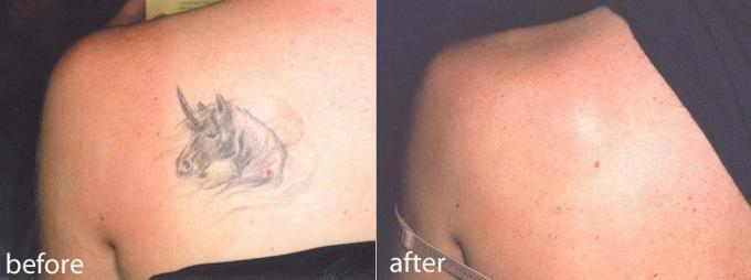 Bottom Price Q Switched Laser Tattoo Removal Beauty Machine For
