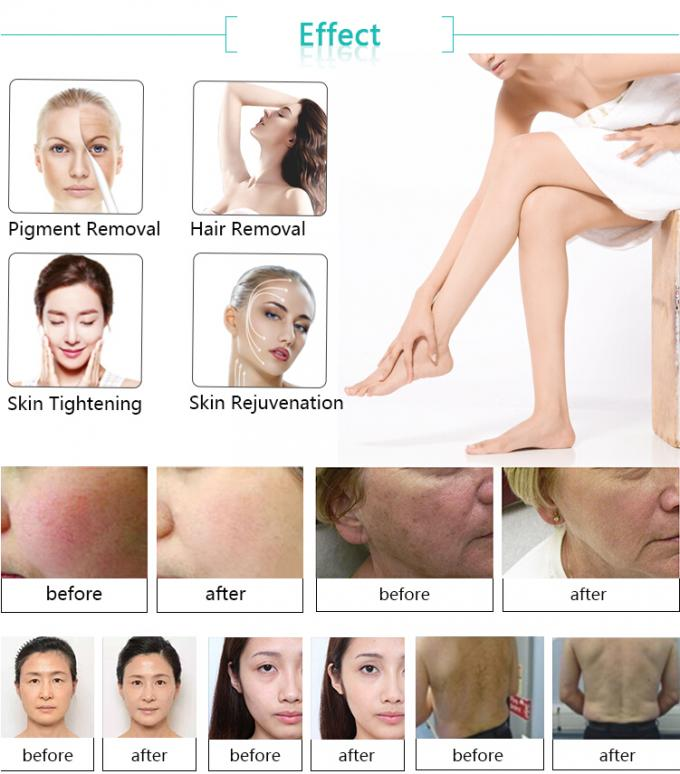 Portable Skin Rejuvenation Beauty Machine , E Light Laser Hair Removal Machine