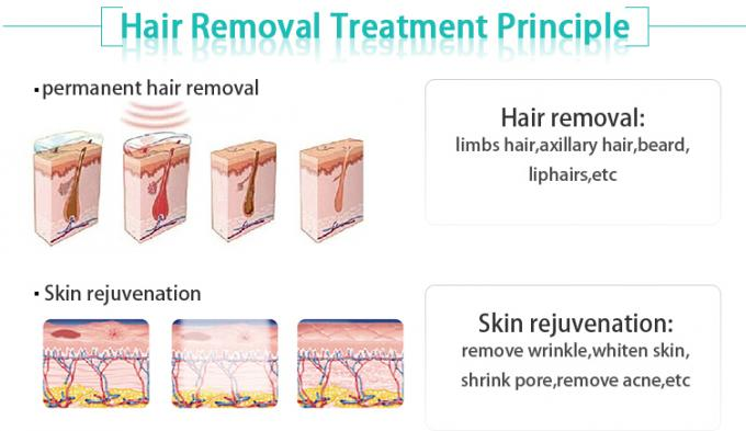 Vertical Type IPL SHR Hair Removal Machine -4-0 Degree Cooling Temperature
