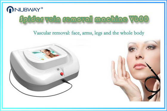 China Vein removal 30MHz Skin Tags Removal Removal Spider Veins Removal Machine distributor
